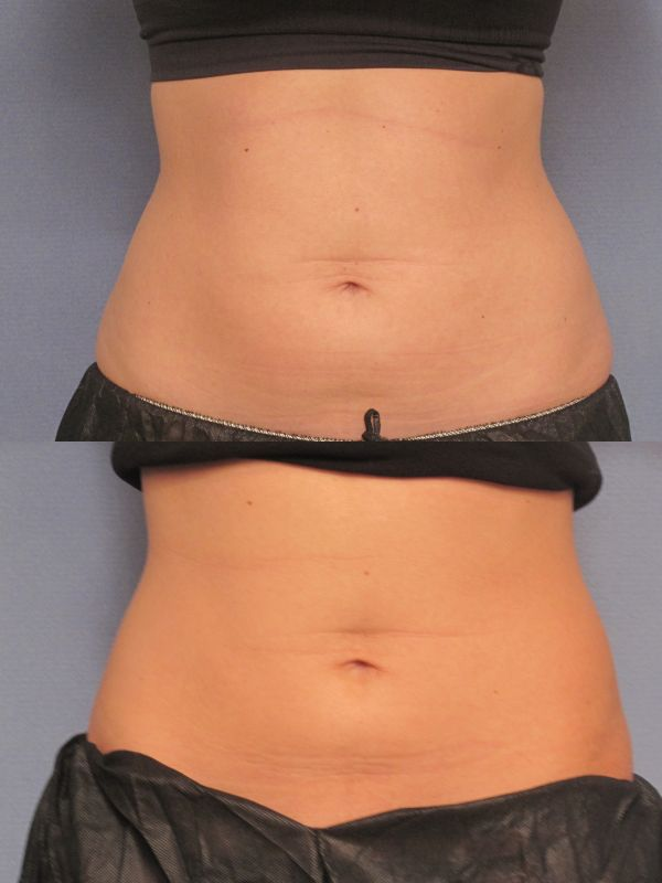 CoolSculpting photos before and after