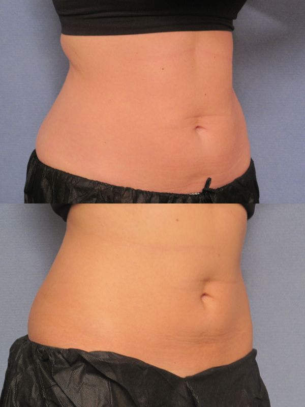CoolSculpting Before and After Results, Ronald C. Russo MD