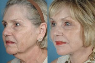 Featured Gallery: Full Face Surgical Rejuvenation|Before and After Photos| Female patient (right side, oblique view)