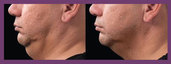 male patient before and after Coolsculpting for the Chin