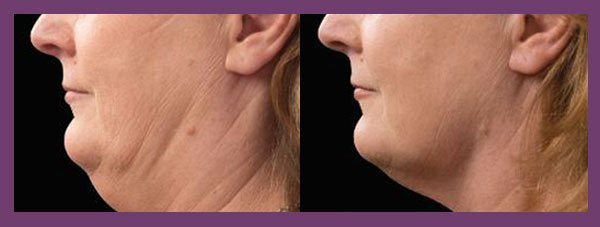 patient before and after Coolsculpting for the Chin