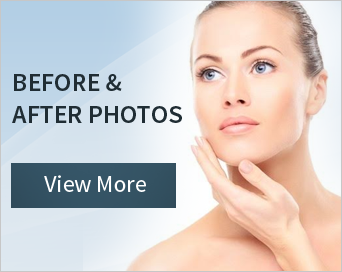 Before and After Photos | View More