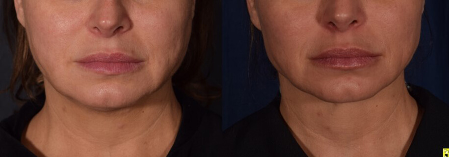 FaceTite Champaign IL | Get Rid of Wrinkles